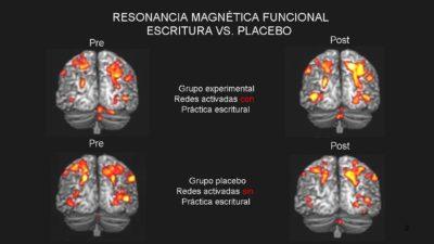 Neuroplasticidad y reeducación: investigaciones contra la «Mala Praxis»